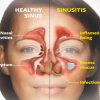 How to clear your sinuses instantly